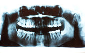 Scanned picture of a X-ray of a human teeth — Stock Photo