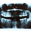 Scanned picture of X-ray of humteeth — Stock Photo #13434276