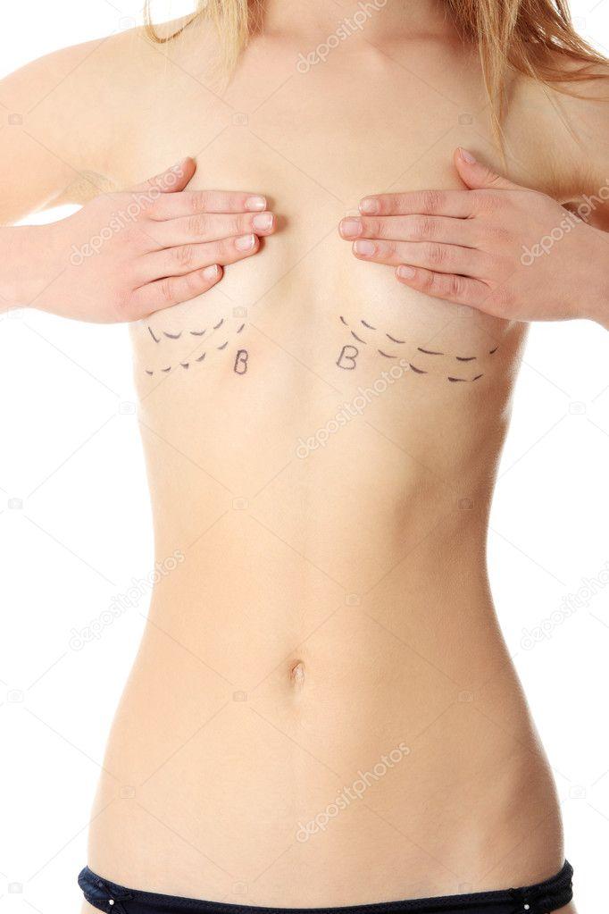 фото формирование груди