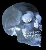 Isolated on black single human skull — Stock Photo