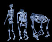 Set of three skeletons isolated on black — Stock Photo