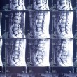 MRI of the human spine. background photo — Stock Photo