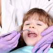 Dentist treats tooth little girl — Stock Photo #43733569