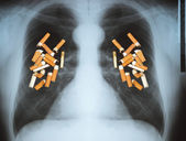 Lung cancer — Stock Photo