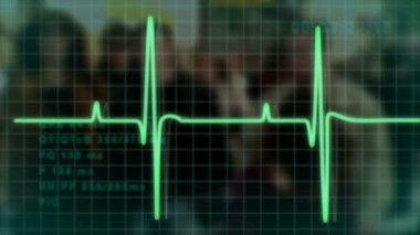 Electrocardiogram pulse trace — Stock Video