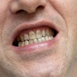������, ������: Man with yellow teeth The harm of tobacco concept
