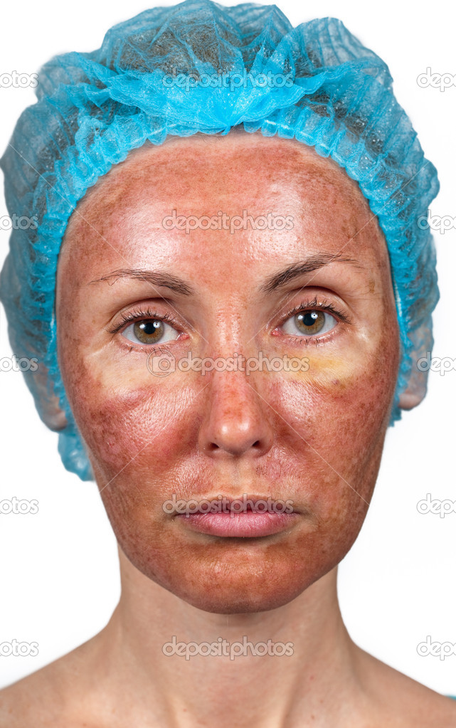 Cosmetology Skin Condition After Chemical Peeling Tca
