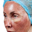 Cosmetology. Skin condition after chemical peeling TCA. beginning of tearing away of top burned layer, — Zdjęcie stockowe #30257651