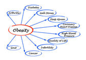 Diagram of Obesity — Stock Photo