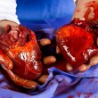 Stock Photo: Heart transplant operation