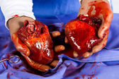 Heart transplant operation — Stock Photo