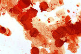 Blood stains — Stock Photo