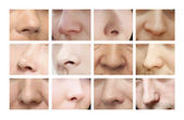 Noses of different shapes — Stock Photo