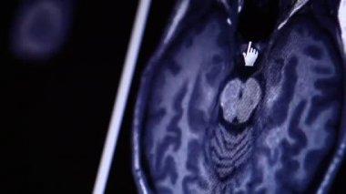 MRI scan on computer moniter — Stock Video
