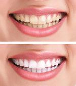 Sourire et des dents saines — Photo
