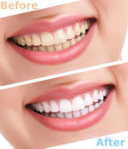 Bleaching teeth treatment — 图库照片