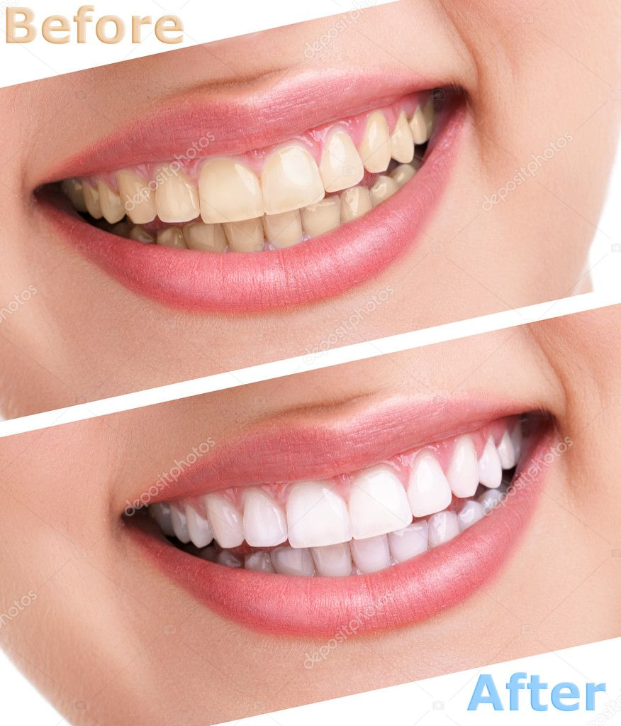 bleaching teeth treatment , close up, isolated on white, before and ...
