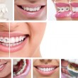 Dental braces — Stock Photo #31884109