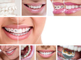 Dental braces — Stock Photo