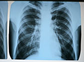 Pneumonia test scanning, modern x-rays radiography — Stock Photo