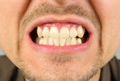 Male mouth, tooth grin — Stock Photo