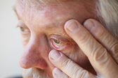 Tired senior man shows lower eyelid — Stock Photo