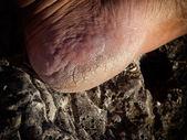 Cracked heel — Stock Photo