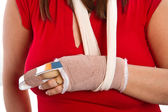 Hand with a splint on the middle finger — Stock Photo
