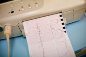 Labor Contractions monitoring in hospital — Stock Photo