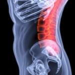 Spine — Stock Photo #2567674