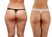 Cellulite buttocks — Stock Photo