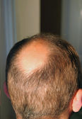 Bald in the sun — Stock Photo
