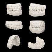 Set of Dental casting gypsum models plaster cast stomatologic hu — Stock Photo