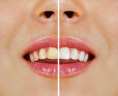 Teeth before and after whitening — Stock Photo
