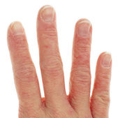 Closeup of Eczema Dermatitis on Fingers — Zdjęcie stockowe