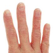 Zbliżenie wyprysku wyprysk na palce — Zdjęcie stockowe