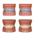 Dental molds — Stock Photo