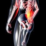 Anatomy - Back Pain — Stock Photo #42605875