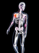 Anatomy - Hurting Shoulder — Stock Photo