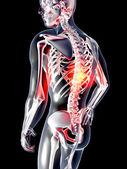 Anatomy - Back Pain — Stock Photo