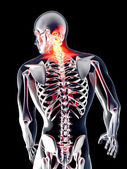 Anatomy - Back Pain — Foto de Stock