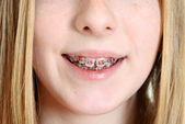 Closeup teen girl with braces — Stock Photo