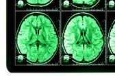 X-ray image of the brain computed tomography — Stock Photo