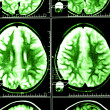 Brain computed tomography — Stock Photo