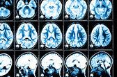 Tomografía computada de la radiografía del cerebro — Foto de Stock