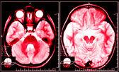 Immagine a raggi x rossa del cervello — Foto Stock
