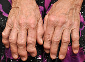 Old female hands — Stock Photo