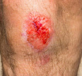 Wound on a knee — Stock Photo