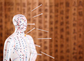 Eastern or Asian acupuncture Medical Treatment. — Stock Photo