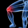 Painful knee illustration — Stock Photo